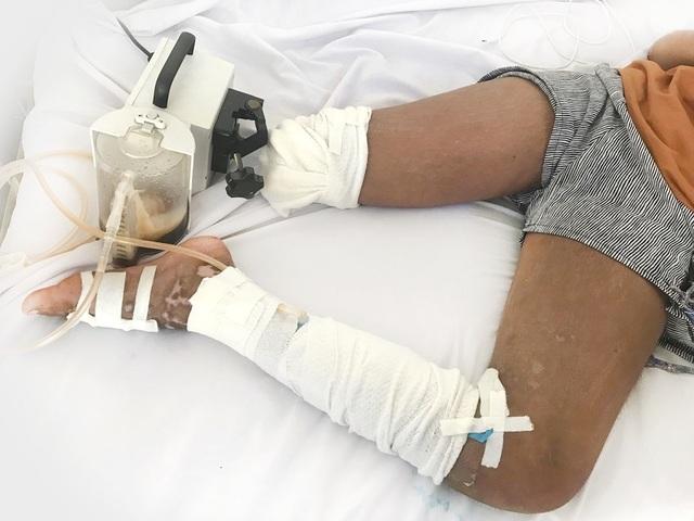 Bé gái mất chân vì thầy lang cắt da nặn máu độc - 1