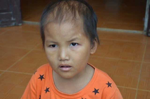 Vợ chồng nghèo bán ruộng cứu con được bạn đọc giúp đỡ hơn 105 triệu đồng - 1