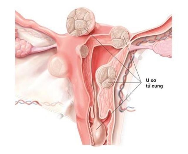 Nga Phụ Khang giúp cải thiện tình trạng u xơ tử cung như thế nào? - 1