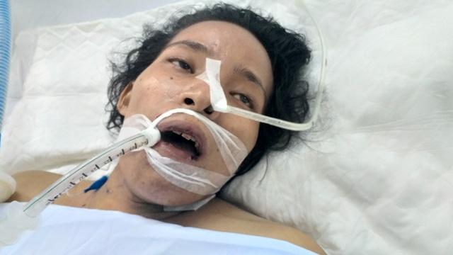 Bạn đọc Dân trí giúp người phụ nữ buôn ve chai bị hai em học sinh tông xe nhập viện - 2
