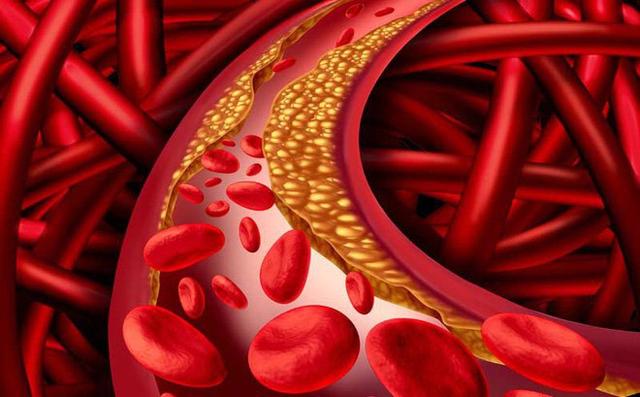 Cải thiện triệu chứng rối loạn lipid máu hiệu quả, an toàn nhờ Lipidcleanz - 1
