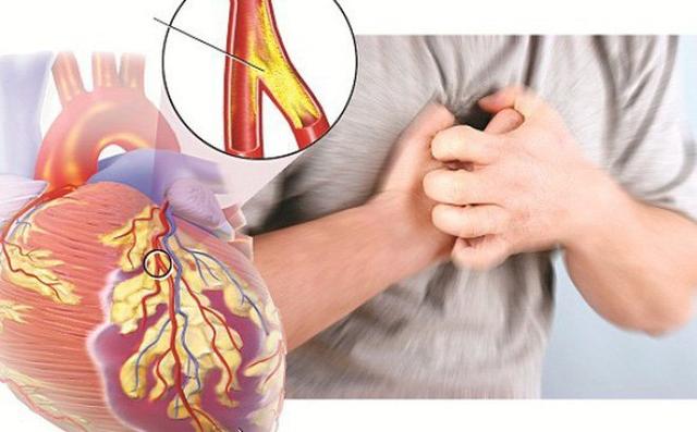 Cải thiện triệu chứng rối loạn lipid máu hiệu quả, an toàn nhờ Lipidcleanz - 2
