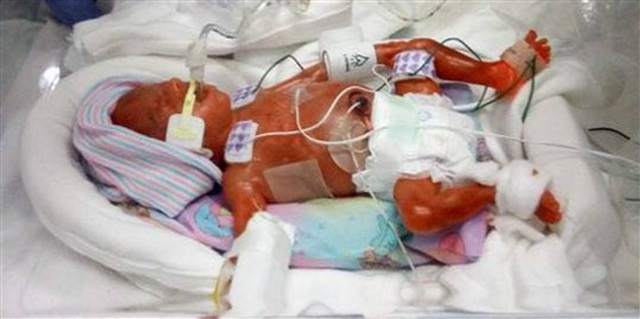 Cặp song sinh sống sót kỳ diệu: Sinh non ở tuần 22, nặng 0,45kg - 1