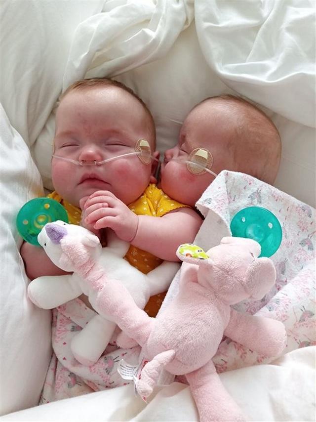 Cặp song sinh sống sót kỳ diệu: Sinh non ở tuần 22, nặng 0,45kg - 3