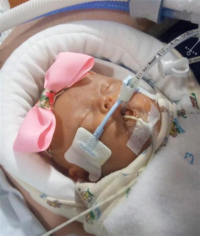 Cặp song sinh sống sót kỳ diệu: Sinh non ở tuần 22, nặng 0,45kg - 4