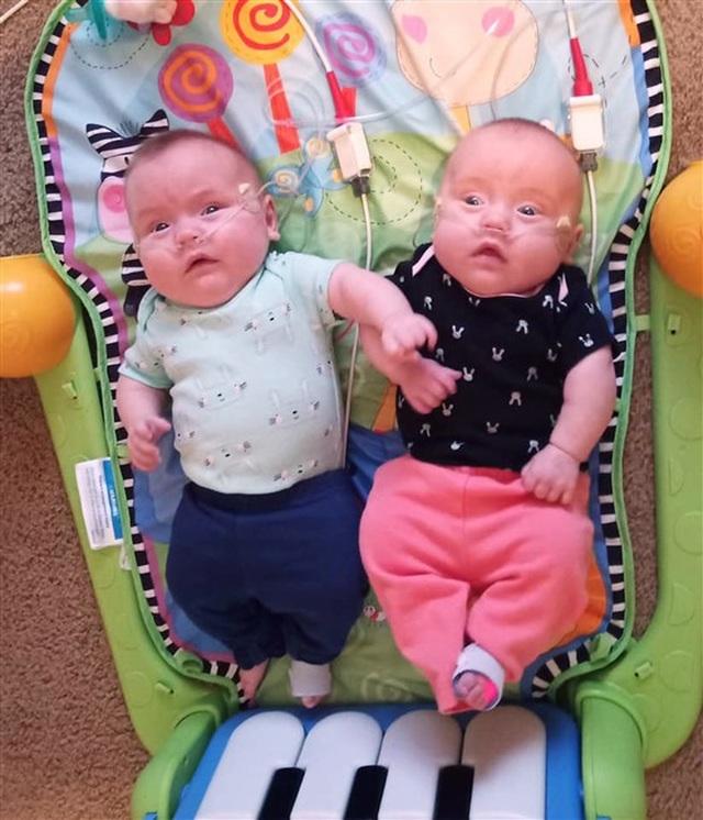 Cặp song sinh sống sót kỳ diệu: Sinh non ở tuần 22, nặng 0,45kg - 5