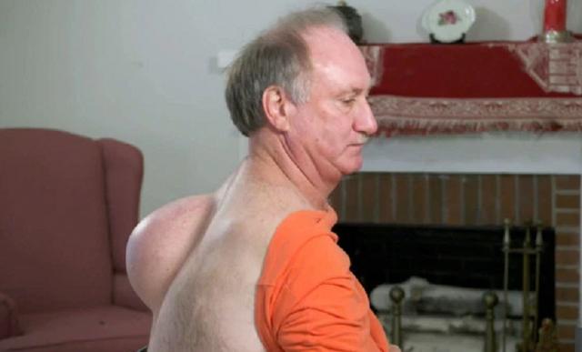 Người đàn ông được giải thoát khỏi khối bướu nặng 6kg mọc trên lưng - 2
