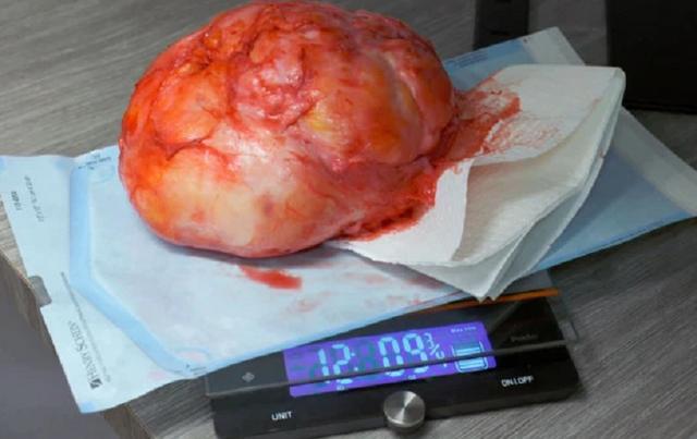 Người đàn ông được giải thoát khỏi khối bướu nặng 6kg mọc trên lưng - 3