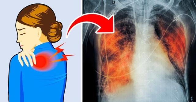 5 triệu chứng ung thư phổi nhiều người không hề hay biết - 1