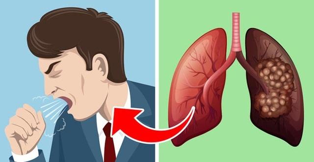 5 triệu chứng ung thư phổi nhiều người không hề hay biết - 2