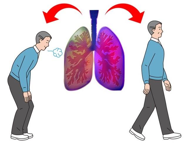5 triệu chứng ung thư phổi nhiều người không hề hay biết - 3