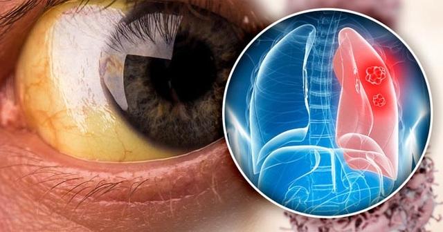 5 triệu chứng ung thư phổi nhiều người không hề hay biết - 4