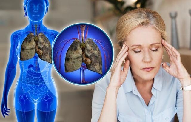 5 triệu chứng ung thư phổi nhiều người không hề hay biết - 5