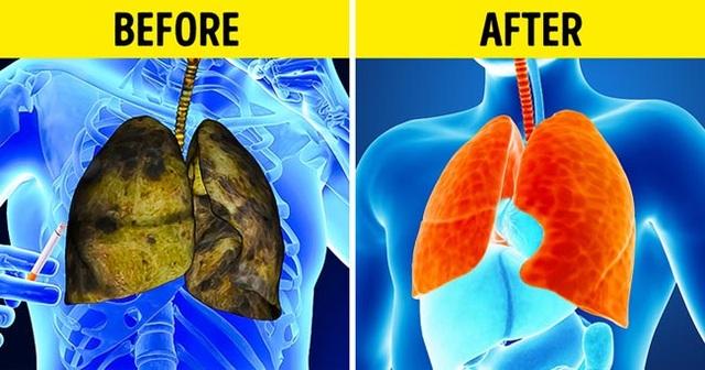 5 triệu chứng ung thư phổi nhiều người không hề hay biết - 6