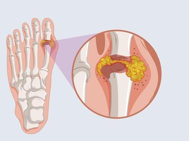Sản phẩm Hoàng Thống Phong – Giải pháp hữu hiệu cho người bị gút ở ngón chân - 1
