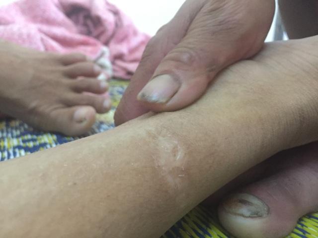 Người cha đau đớn vì vết xích nơi cổ chân con - 3