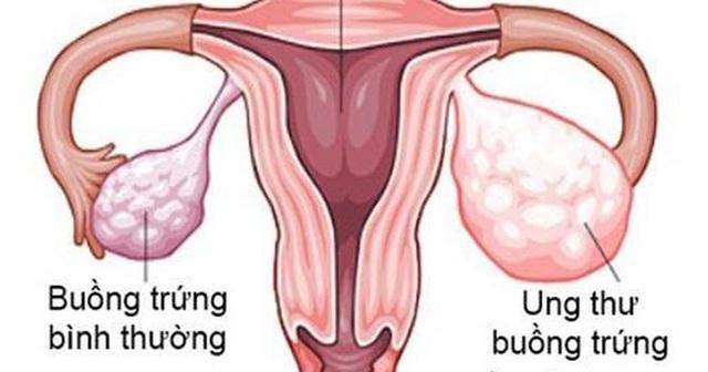 Phụ Lạc Cao EX giúp chị em không còn lo nguy cơ lạc nội mạc tử cung - 1