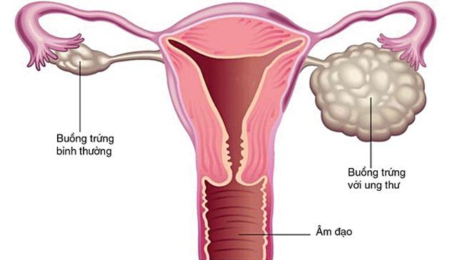 Nhiều trẻ mới hơn 10 tuổi đã bị ung thư buồng trứng - 1
