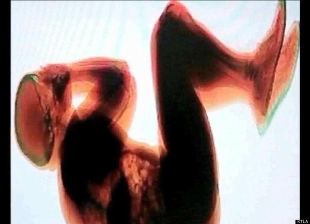 Những bức ảnh y khoa khiến cả thế giới kinh ngạc - Ảnh minh hoạ 2