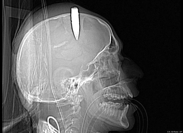 Những bức ảnh y khoa khiến cả thế giới kinh ngạc - Ảnh minh hoạ 4