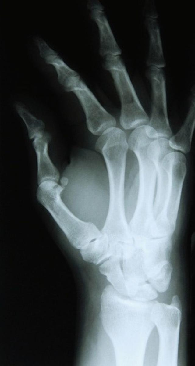 Bí ẩn xương ngón tay tìm thấy trong đôi tất của cửa hàng quần áo - 1