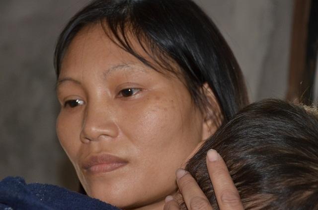 Bà mẹ đơn thân ôm con trai không có hậu môn sống cơ cực trong đói nghèo - 3