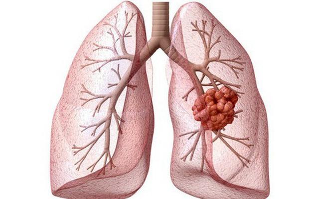 Phát hiện mới: Kết hợp Đông-Tây y trong điều trị ung thư mang lại kết quả vượt trội - 1