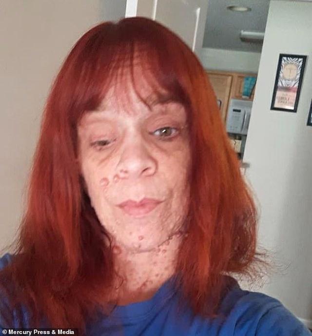 Người phụ nữ công khai cơ thể bị hàng ngàn khối u bao phủ - Ảnh minh hoạ 3
