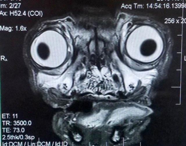 Ác mộng hình ảnh cộng hưởng từ của chó Pug - 1