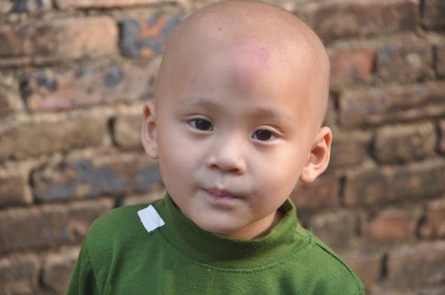 Mẹ đau đớn như đứt từng khúc ruột nhìn con trai 3 tuổi ung thư ôm em gái tim bẩm sinh - 1
