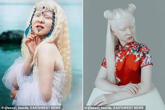 Sửng sốt trước diện mạo khác biệt của hai chị em người Kazakhstan - 3