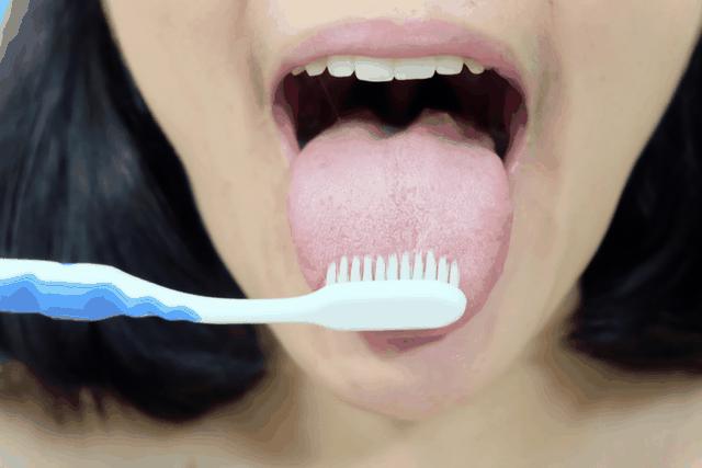 Ung thư lưỡi ngày càng phổ biến, bác sĩ cảnh báo 4 nguyên nhân gây bệnh - 3