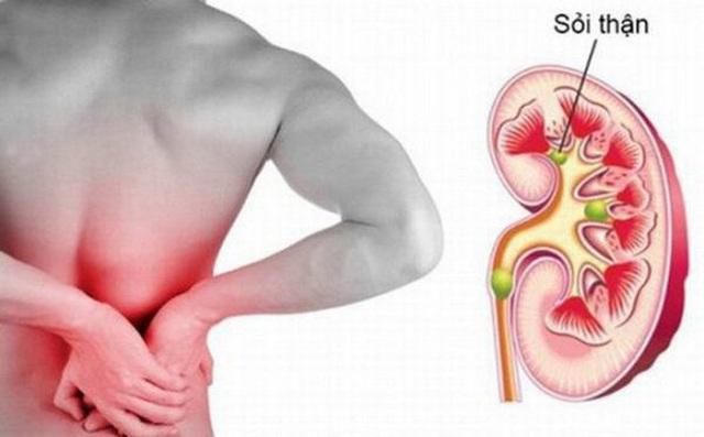 Cách điều trị sỏi thận hiệu quả và ít đau đớn - 1