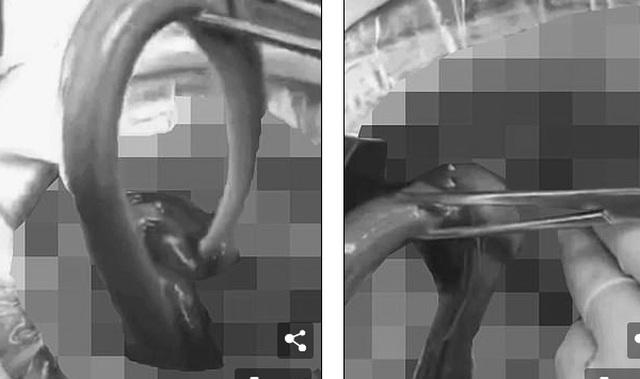 """Hai con lươn sống """"chọc thủng"""" ruột người đàn ông 51 tuổi - 1"""