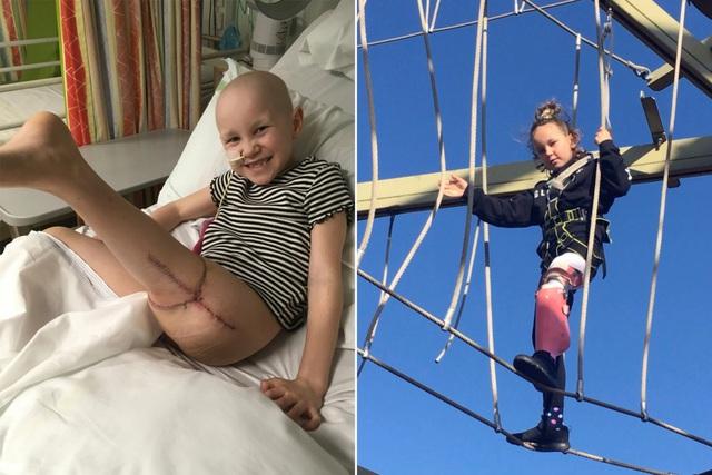 Mắc ung thư xương, bé 7 tuổi được cứu bằng ca phẫu thuật…xoay ngược chân - 1