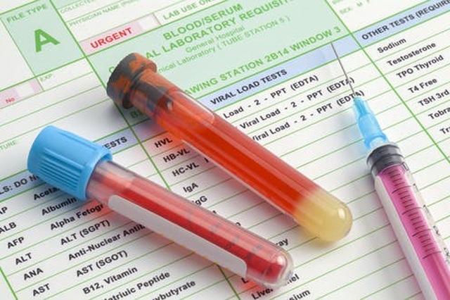 Xét nghiệm chất chỉ điểm u giúp phát hiện sớm ung thư? - 1