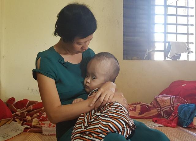 Bạn đọc giúp đỡ gia đình bé bị não úng thuỷ hơn 42 triệu đồng - 3