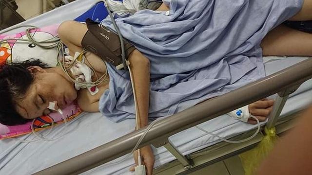 Thai phụ suýt chết dưới gầm xe tải trở thành bệnh nhân đặc biệt nhất trong cuộc đời bác sĩ - 1
