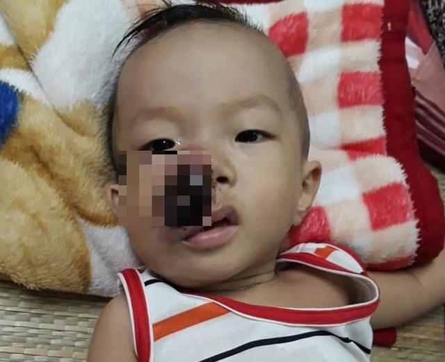 Bé 3 tuổi khóc lạc giọng gọi: Mẹ ơi! mẹ cứu con - 1