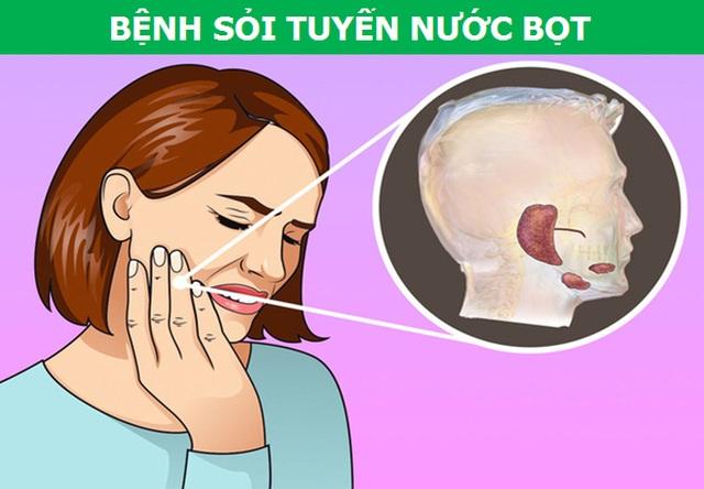 Những cơn đau kỳ lạ xuất phát từ răng miệng nói lên điều gì về sức khỏe? - 3