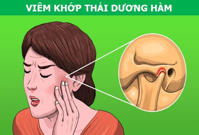 Những cơn đau kỳ lạ xuất phát từ răng miệng nói lên điều gì về sức khỏe? - 6