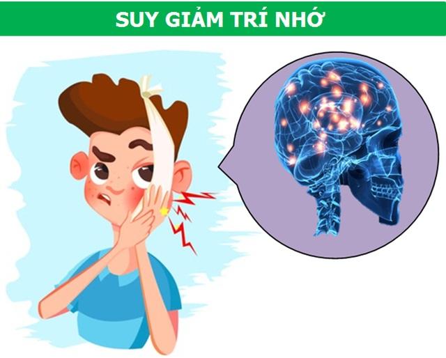 Những cơn đau kỳ lạ xuất phát từ răng miệng nói lên điều gì về sức khỏe? - 5