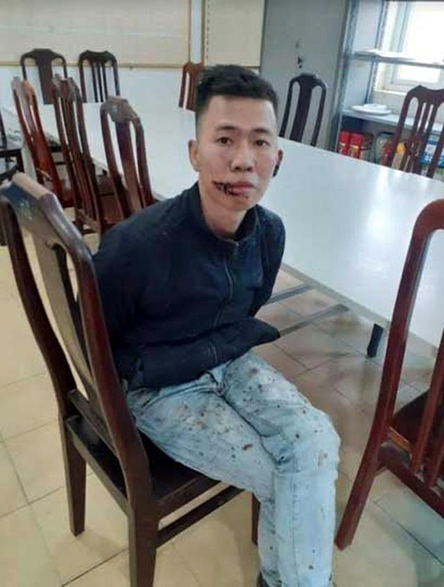 Hà Nội: Giám định tâm thần thanh niên chém bố mẹ thương vong - 1
