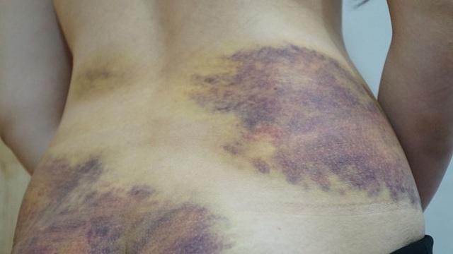 Một phụ nữ tố bị chồng bạo hành dã man, ép quan hệ tình dục - 1