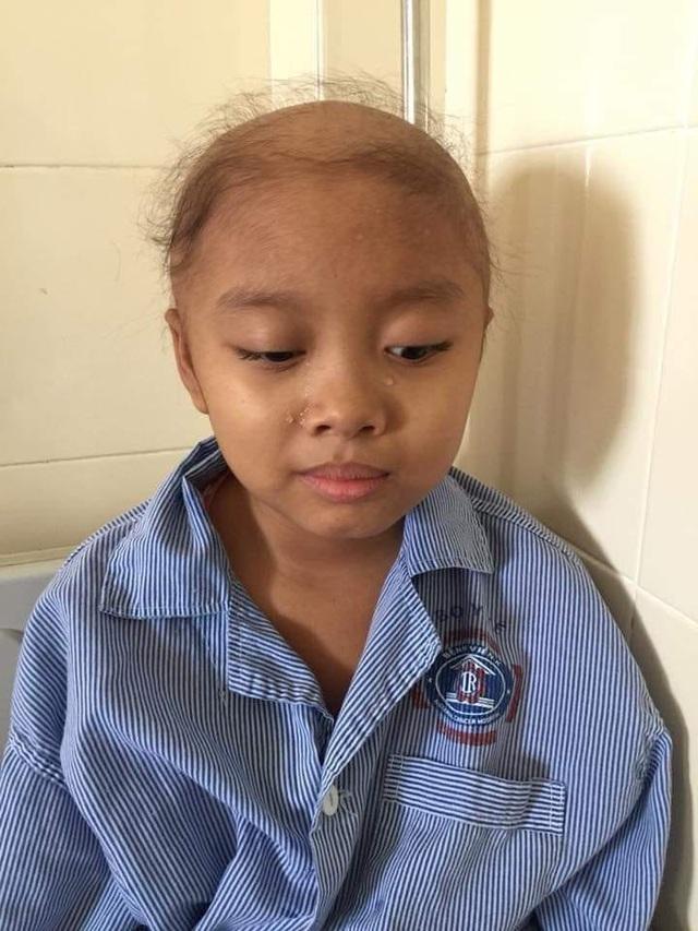 Bạn đọc giúp đỡ cô bé u não đội đơn cầu cứu gần 83 triệu đồng - 1