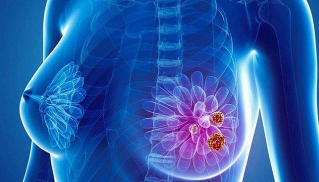 Các phương pháp điều trị ung thư vú - 1