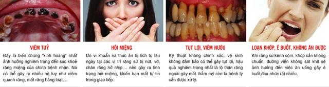Phục hình răng sứ thẩm mỹ tại Dora có đáng lo ngại? - 1
