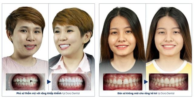 Phục hình răng sứ thẩm mỹ tại Dora có đáng lo ngại? - 4