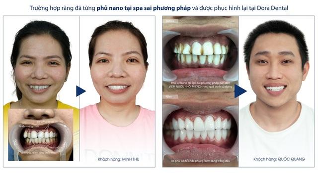 Phục hình răng sứ thẩm mỹ tại Dora có đáng lo ngại? - 5