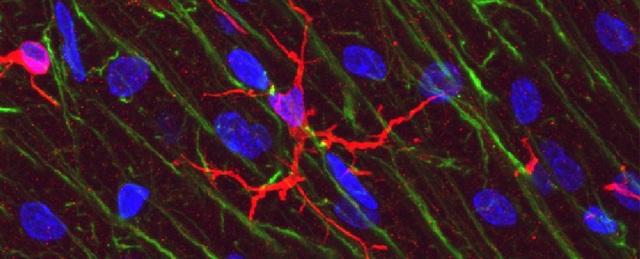 Tế bào miễn dịch phổ biến trong não có thể đóng vai trò chính trong bộ nhớ - 1